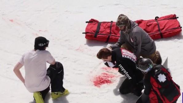 Shaun White Injury