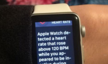 Vikings Fans Wearing Apple Watches Got Notified That They May Be Having A Heart Attack During Last Play