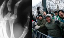 Deranged Eagles Fan Purposely Broke 3 Of His Fingers To Get Off Work & Attend Super Bowl Parade (VIDEO)