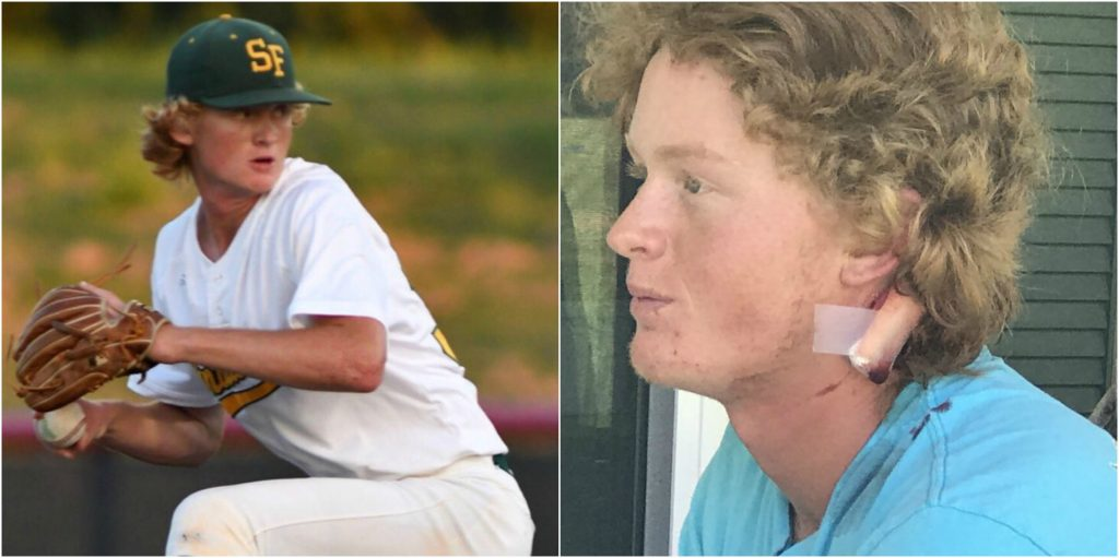 Santa Fe High School Pitcher Survived Shot To The Back of ...