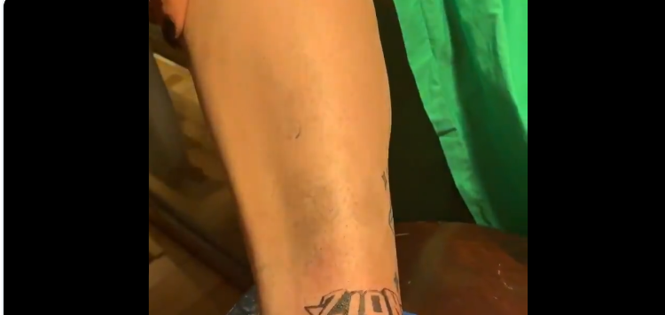 POOR KNICKS FAN TATTED ZION WILLIAMSON ON HIS ANKLE BEFORE THE DRAFT LOTTERY (VIDEO)