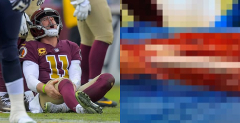 Alex Smith S Bone Was Completely Exposed A Week After His Injury And 8 Surgeries Video Pic Total Pro Sports